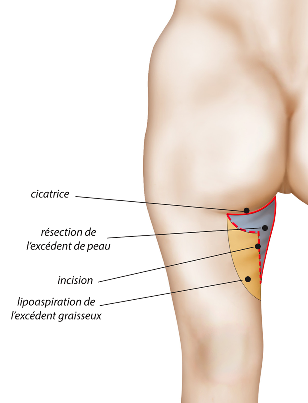cicatrice-lifting-cuisse-2.png