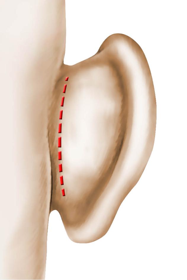 chirurgie-des-oreilles-decollees.png