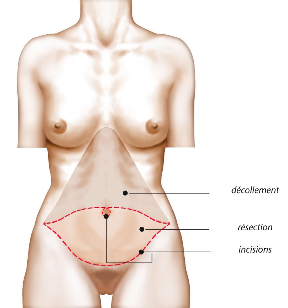 abdominoplastie-1.png