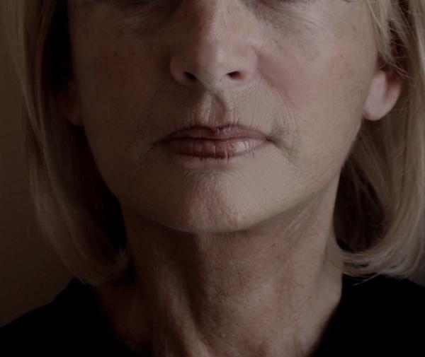 après lifting de l'ovale du visage et du cou