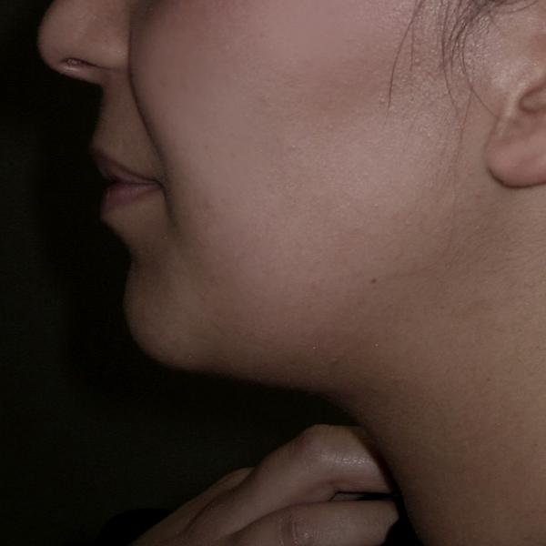après, réduction du volume graisseux et rétraction cutanée