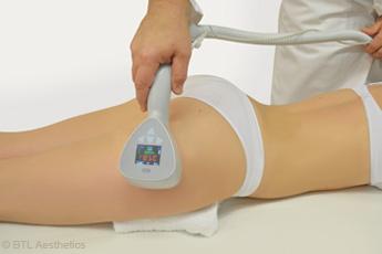 L'Exilis Elite™, appareil anti-cellulite qui associe radiofréquence monopolaire et ultrasons