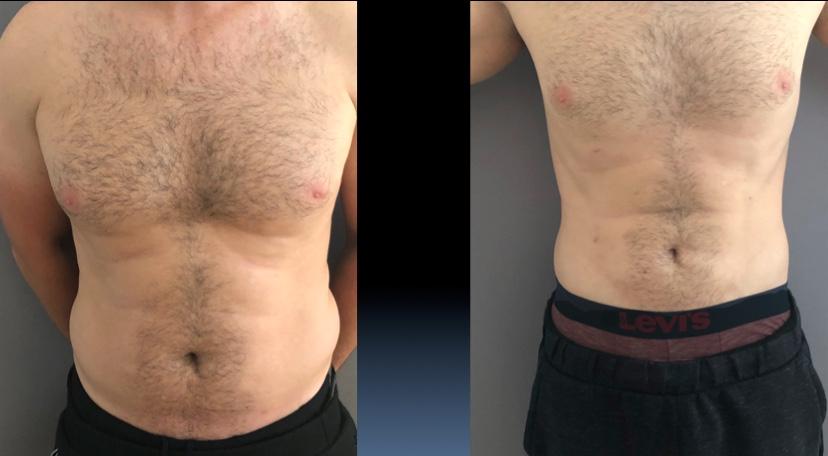 Sculpture des abdominaux, à droite le résultat à six mois