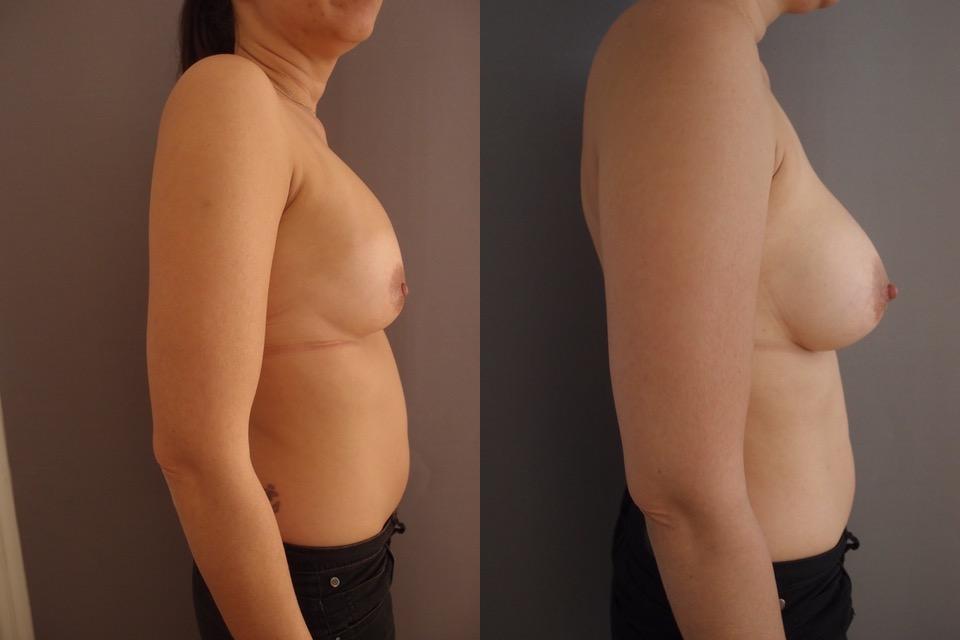 à gauche, avant, le sein a capoté sous la prothèse trop haute, posée 8 ans plus tôt (2 grossesses avec allaitement prolongé depuis) ; à droite, correction de l'aspect tombant et de la voussure inesthétique par changement et pose de prothèse anatomique
