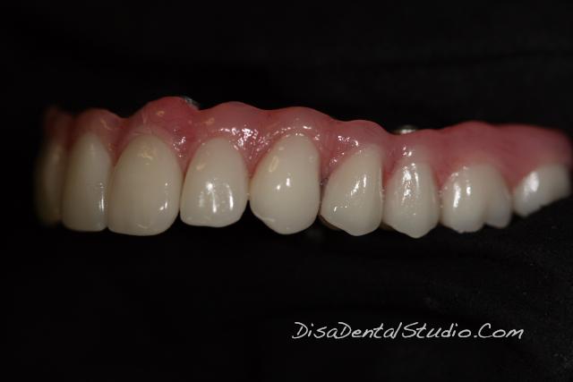 Hybrid Denture