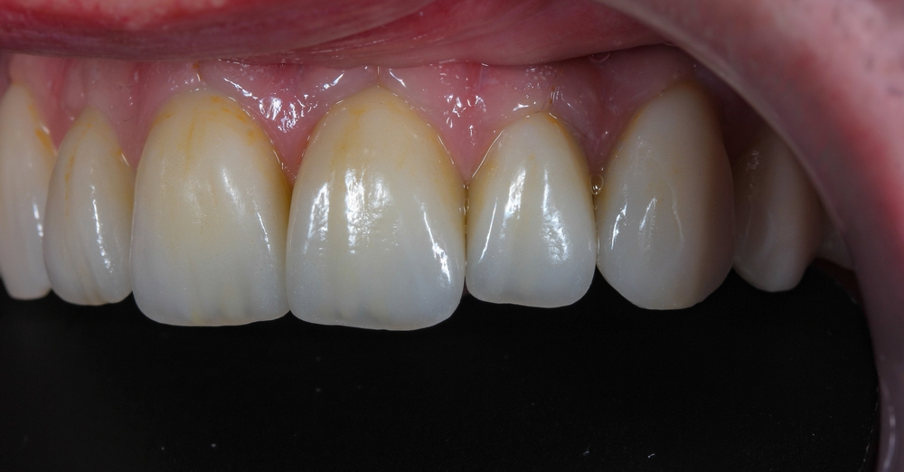 Full Arch Screw Retained Pekkton