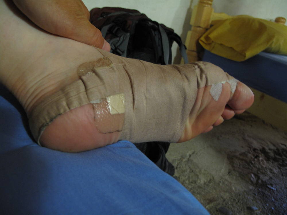 I have been pretty honest about my foot struggles while walking my first Camino.  This photo is an example of my taping technique which alleviated some pain from my tendonitis.  I also had a few blisters I was working on too.