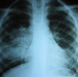 x-ray of TB pneumonia