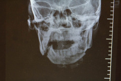 mandible x-ray