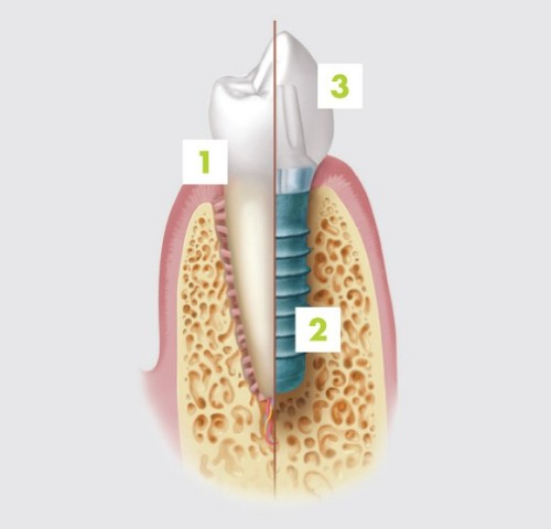 1 - natural tooth | 2 - dental implant | 3 - implant crown