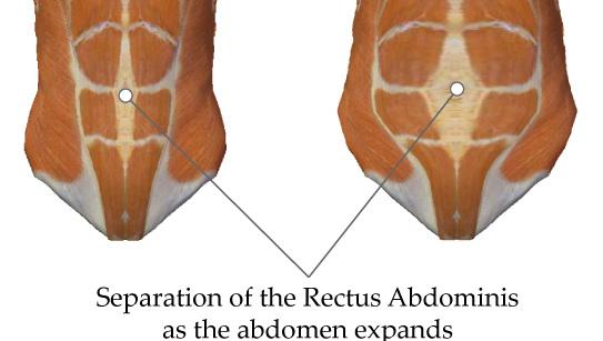 abdominis-diastises.jpg