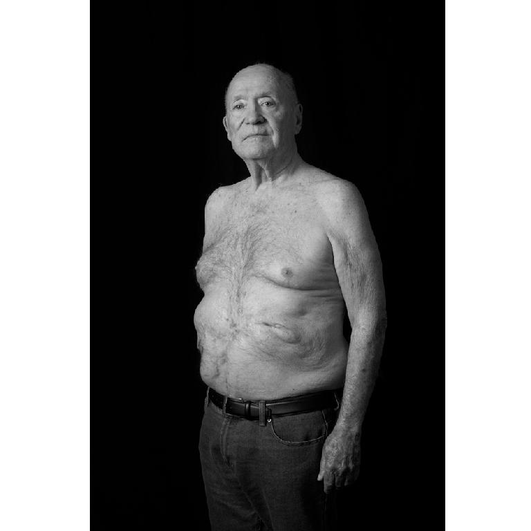John. Surgery scars