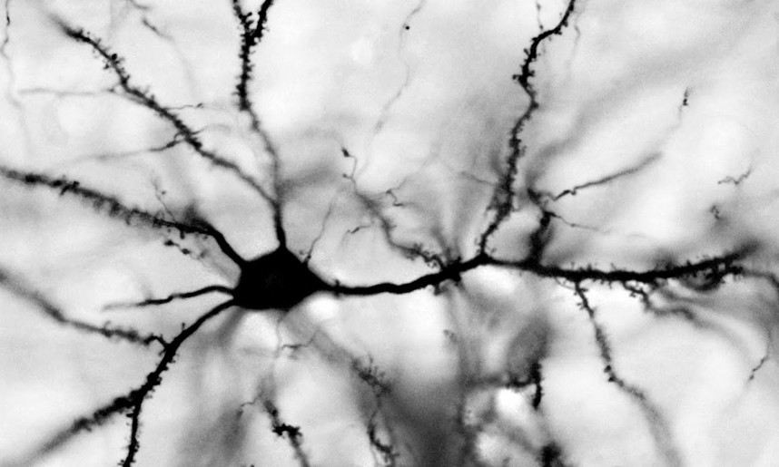 Dentrites are the receptors and communicators between neurons. Photo Credit: Edinburgh University / The Telegraph