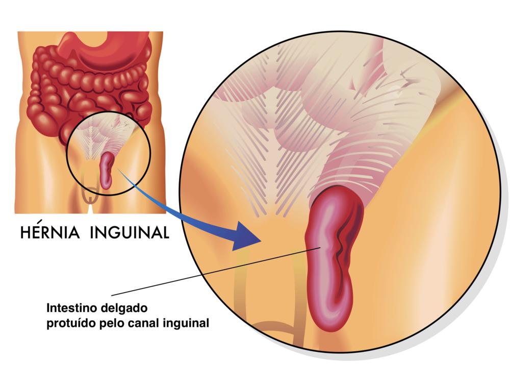 Hérnia Inguinal - Figura demonstrando a protusão de uma alça de intestino delgado através do canal inguinal