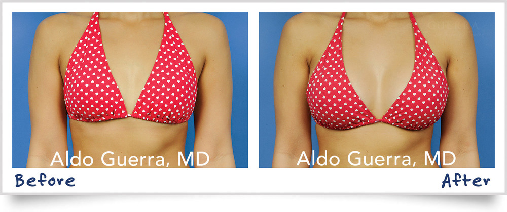 Boob Implants Before And After 23