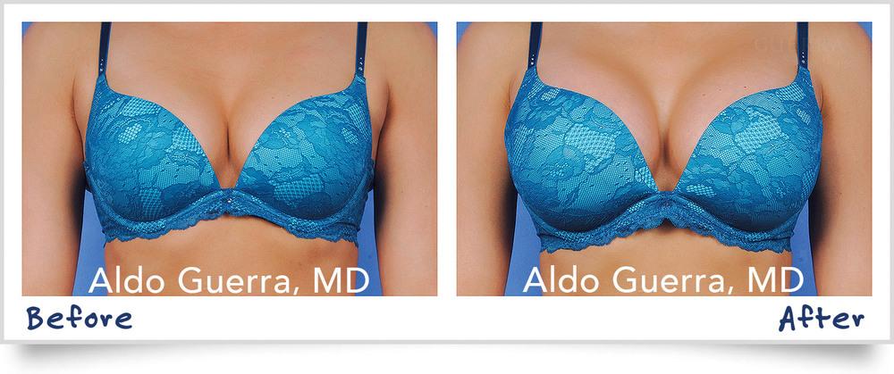 Breast Augmentation Bikini Before After Photo