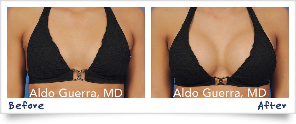 breast augmentation sizes