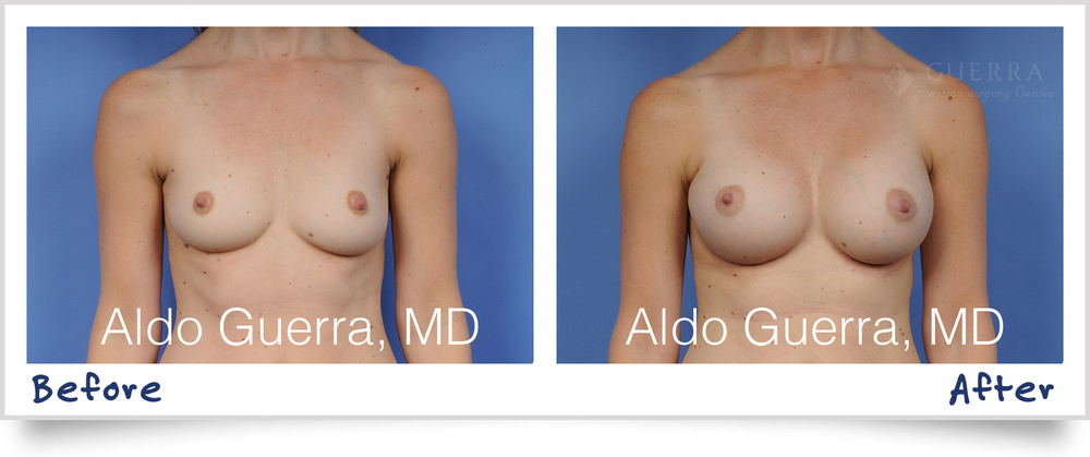 dr-aldo-guerra-actual-patient-breast-augmentation-memory-shape-1002018_1800x755.jpg