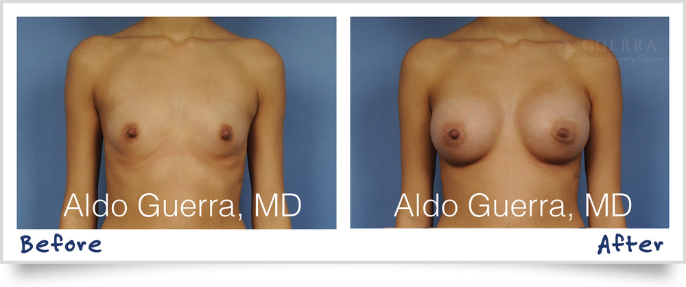 dr-aldo-guerra-actual-patient-breast-augmentation-memory-shape-1002032_1800x755.jpg