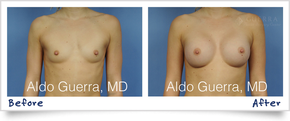 Breast Augmentation Teardrop MemoryShape Breast Implants