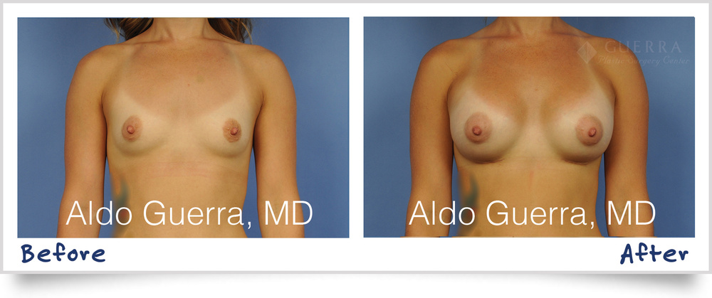 MemoryShape Teardrop Before After Breast Implant Photos