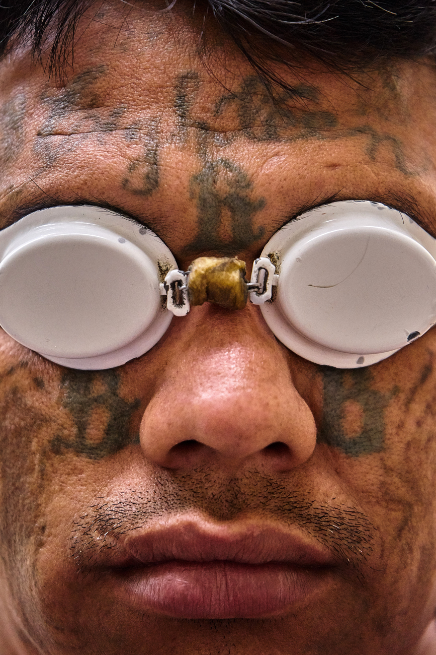 Raul, an ex 18th Street gang member, waits to undergo a laser removal session for some of his many tattoos. after serving time in San Francisco Prison. Raul left gang life behind to raise a family and become a pastor. In El Salvador gang code dictates that the only way you can leave your clica is to either die or become a man of God
