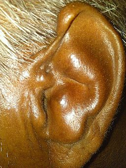 Causes Of Cauliflower Ear