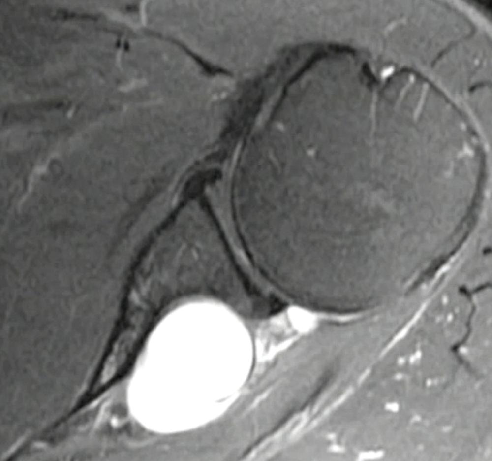 Cisto paralabial (ou paralabral) causado pela lesão de SLAP