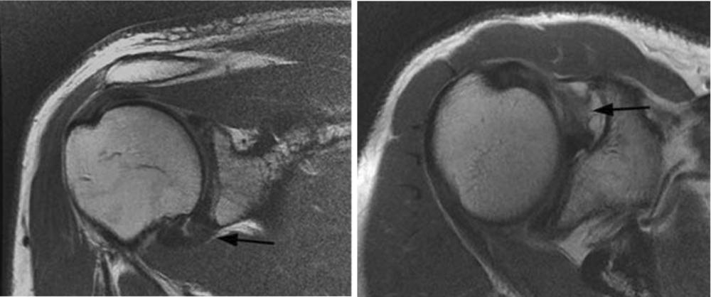 Ressonância magnética de capsulite adesiva. As setas indicam os locais das aderências.