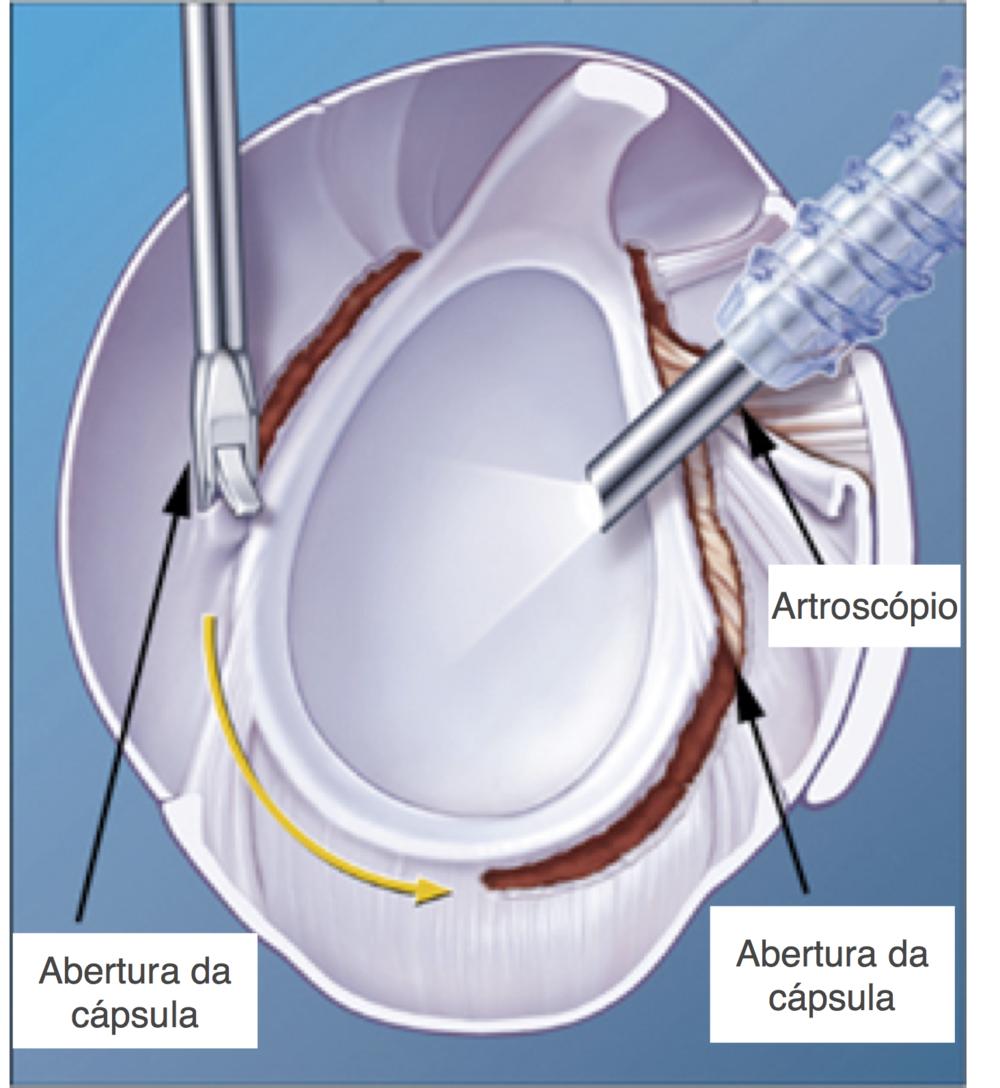 Liberação artroscópica da capsulite adesiva