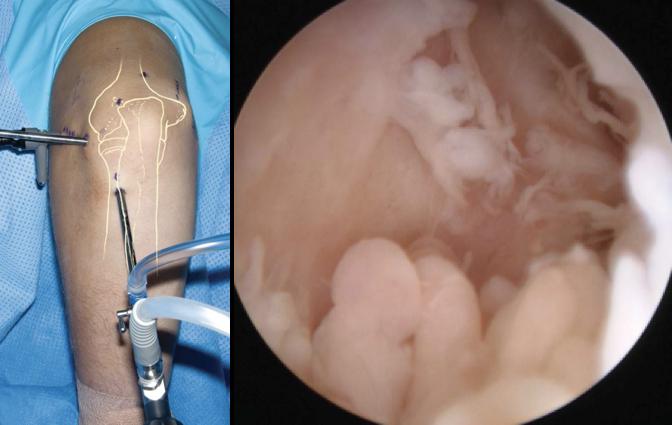 Artroscopia para a liberação do cotovelo