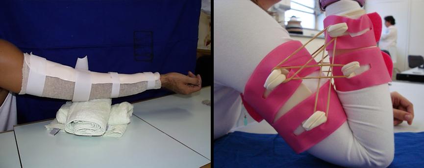 Órteses utilizadas para ganho da amplitude de movimento do cotovelo. As imagens acima foram fornecidas pela equipe de Terapia Ocupacional do IOT HCFMUSP, sob chefia da terapeuta Maria Cândida Luzo
