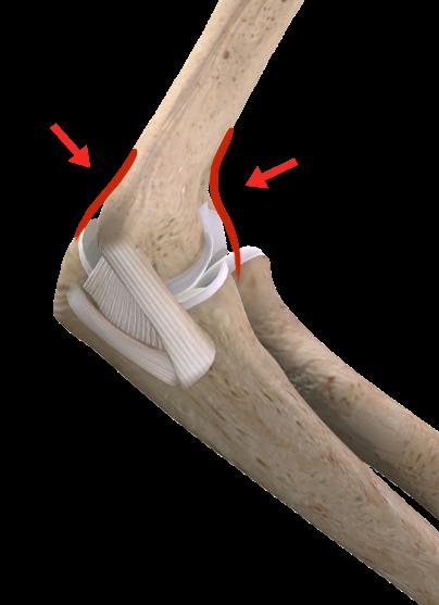 Lesão da cápsula articular