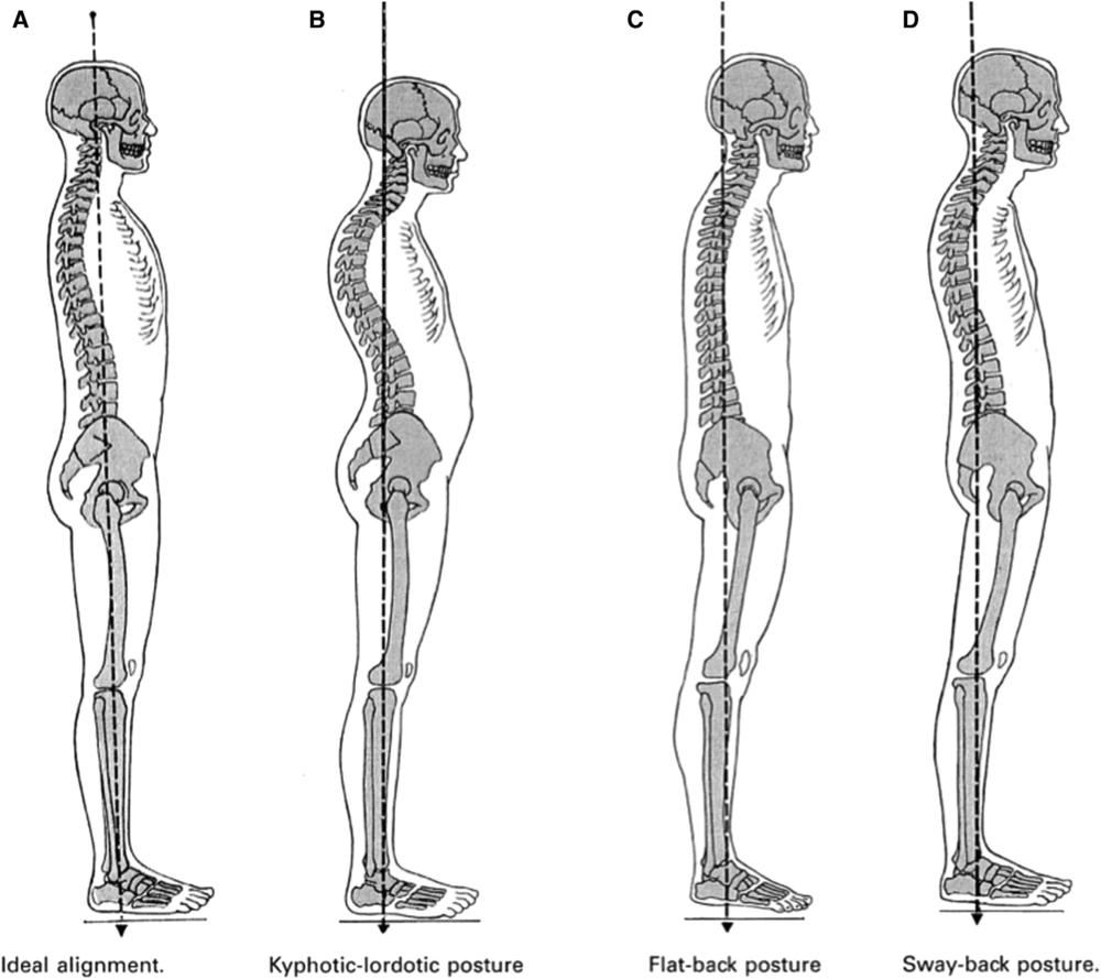 """Classificação postural de Kendall[1]. A) Alinhamento postural ideal; B) Postura cifótica-lordótica; C) Postura """"Flat-back""""; D) Postura em """"Sway-back"""""""