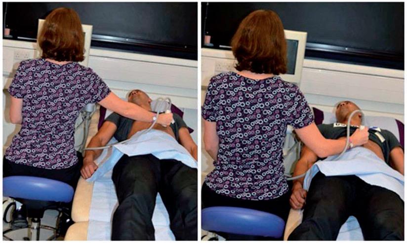 Foto demonstrando o posicionamento do ombro de uma médica ultrassonografista. Na imagem da esquerda, podemos ver o ombro em abdução, fato que aumenta o risco de dor no ombro. Na imagem da direita, vemos o ombro melhor posicionado. Fonte: Harrison et al.[5]