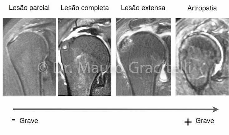 Evolução das lesões do manguito rotador