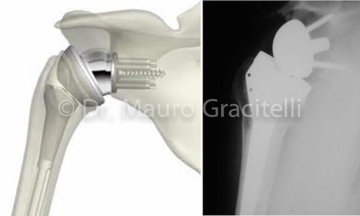 artropatia 05.jpg