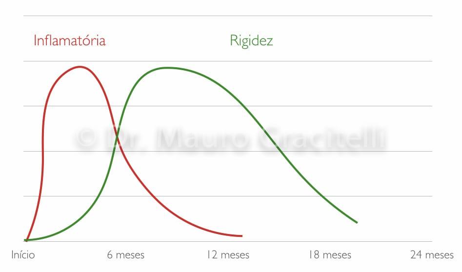 Gráfico dos sintomas da capsulite adesiva de acordo com a fase da doença