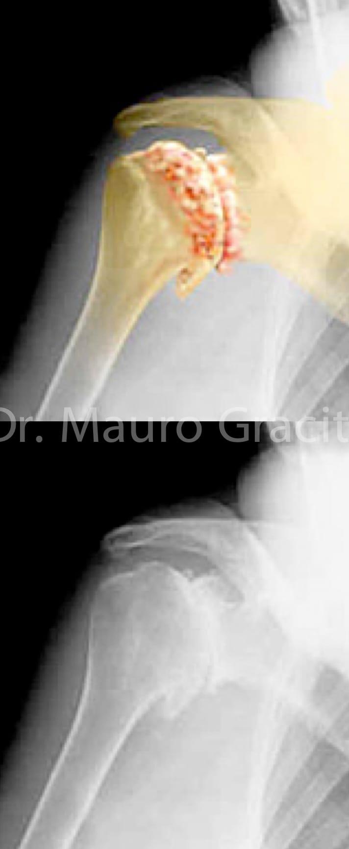artrose_ombro01.jpg