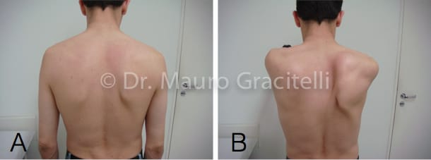 avaliação clínica do paciente com discinesia da escápula. A) em repouso B) com elevação do ombro