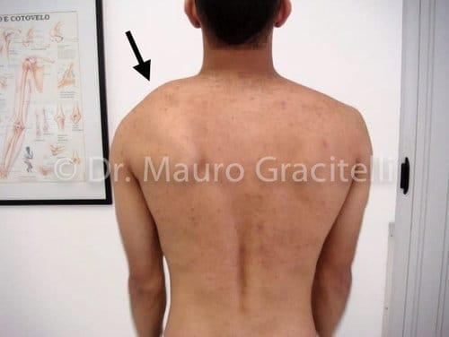 Discinesia da escápula por desequilíbrio muscular