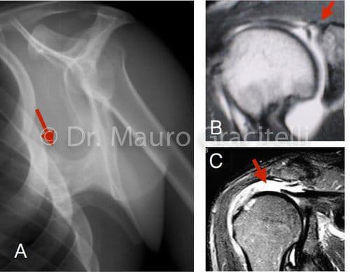 Causas secundárias de discinesia da escápula. A) Tumor benigno (osteocondroma) B) lesão SLAP c) lesão extensa do manguito rotador