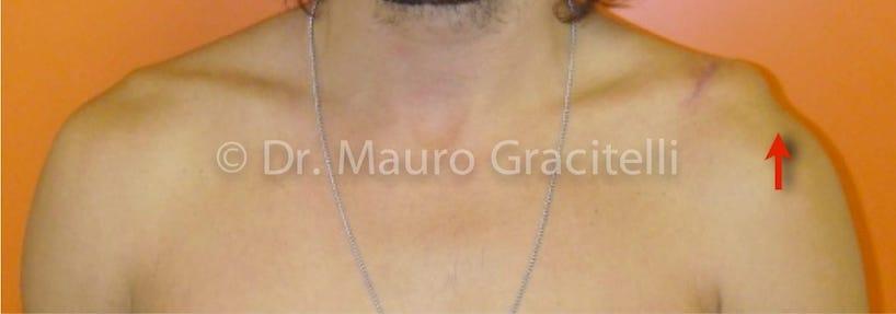 luxacao_acromio_clavicular_ombro03.jpg