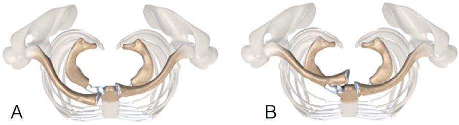 Direção da luxação esternoclavicular: A) anterior b) Posterior