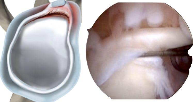 Lesão do lábio superior