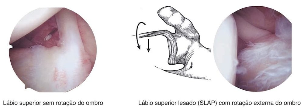 Mecanismo de pell-back da lesão de SLAP