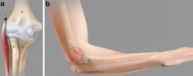 a) Local da lesão da epicondilite lateral B) Local mais comum de dor