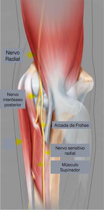 Trajeto do nervo radial no cotovelo e antebraço e locais de possível compressão