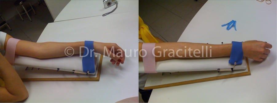 Alongamento do cotovelo para ganho de extensão, realizado de modo leve e progressivO