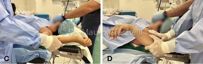 Exemplo de um paciente submetido ao procedimento tríplice para capsulite adesiva, com ganho significativo da amplitude do movimento do ombro.